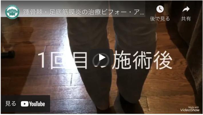 踵骨棘・足底筋膜炎の施術例